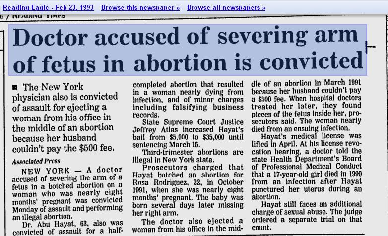 Doctor accused of severing arm of fetus in abortion is convicted - Reading Eagle, 2-23-1993